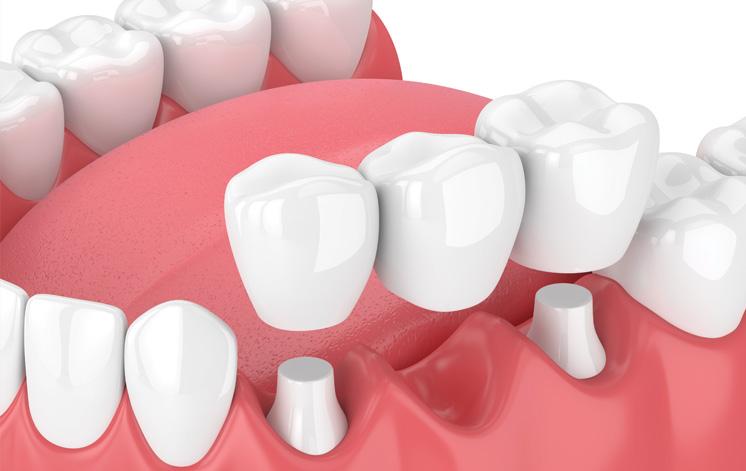 Treatment - King Cross Dental